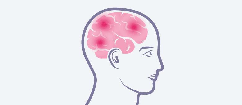 Parkinson(ismen)